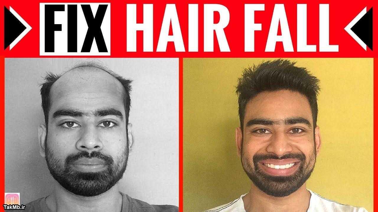 درمان طبیعی ریزش مو + راهکار افزایش رشد موها